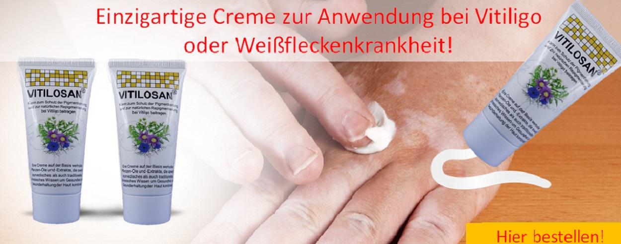 Anwendungsbespiel Vitiligo-Hände